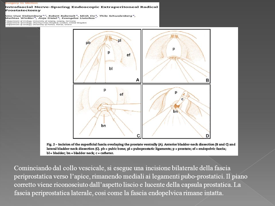 Cominciando dal collo vescicale, si esegue una incisione bilaterale della fascia periprostatica verso lapice, rimanendo mediali ai legamenti pubo-prostatici.