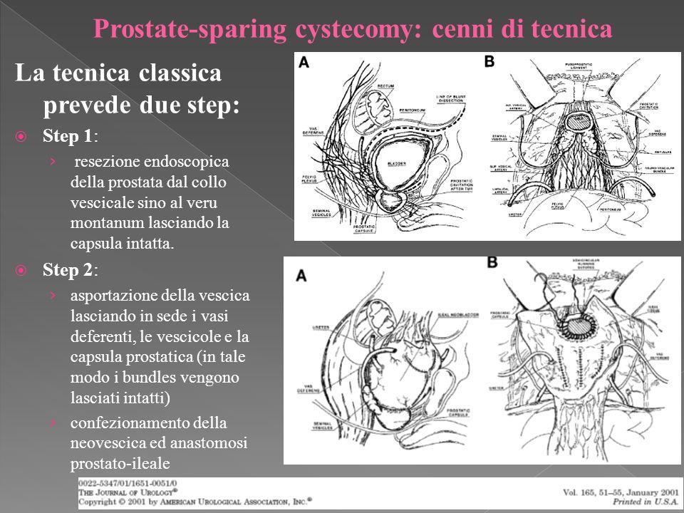 La tecnica classica prevede due step: Step 1: resezione endoscopica della prostata dal collo vescicale sino al veru montanum lasciando la capsula intatta.