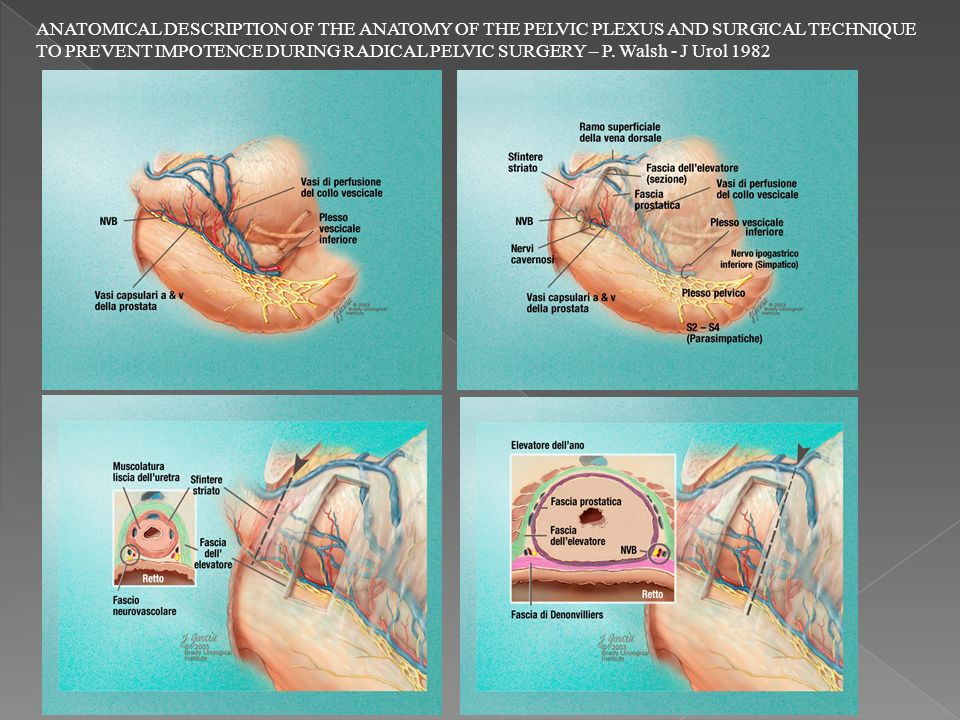 ANATOMICAL DESCRIPTION OF THE ANATOMY OF THE PELVIC PLEXUS AND SURGICAL TECHNIQUE TO PREVENT IMPOTENCE DURING RADICAL PELVIC SURGERY – P.