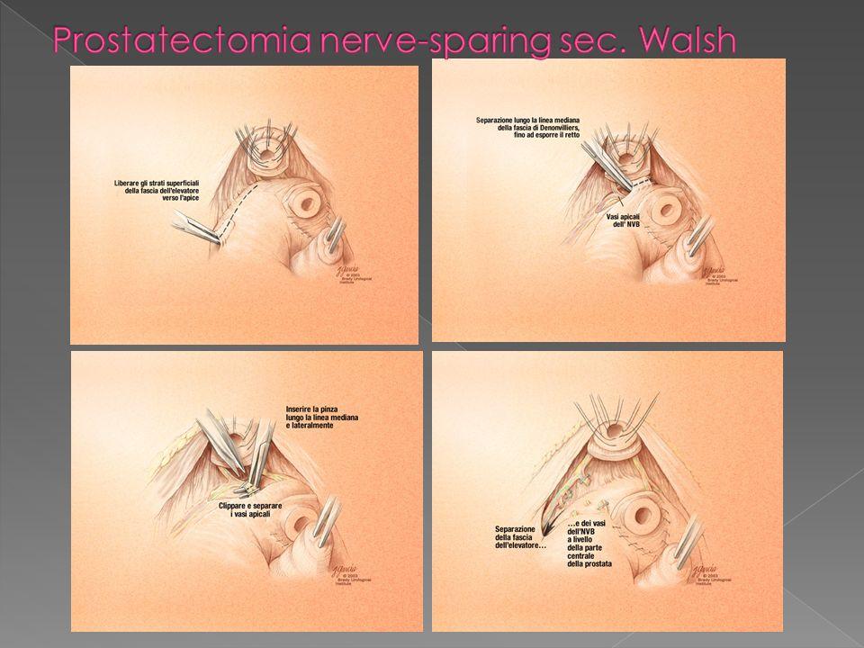 Il vacuum device (VCD) è stato utilizzato con successo in un ampia varietà di disfuzione erettiva organica Cookson et al (J Urol 1993) hanno riportato una soddisfazione del 100% nei pz che utilizzavano il VCD dopo prostatectomia radicale contro l83% del gruppo che non utilizzava il presidio Derouet et al (Andrologia 1999) affermano che il VCD era il presidio maggiormente preferito dai loro pazienti dopo chirurgia pelvica Zippe et al (Curr Urol Rep 2001) hanno proposto lutilizzo del VCD nella riabilitazione precoce dopo PR, verificandone la tollerabilità e la sicurezza