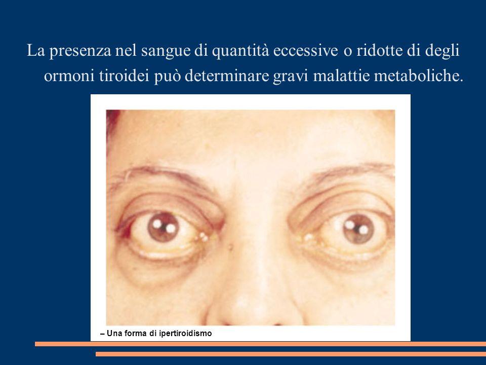 – Una forma di ipertiroidismo La presenza nel sangue di quantità eccessive o ridotte di degli ormoni tiroidei può determinare gravi malattie metaboliche.