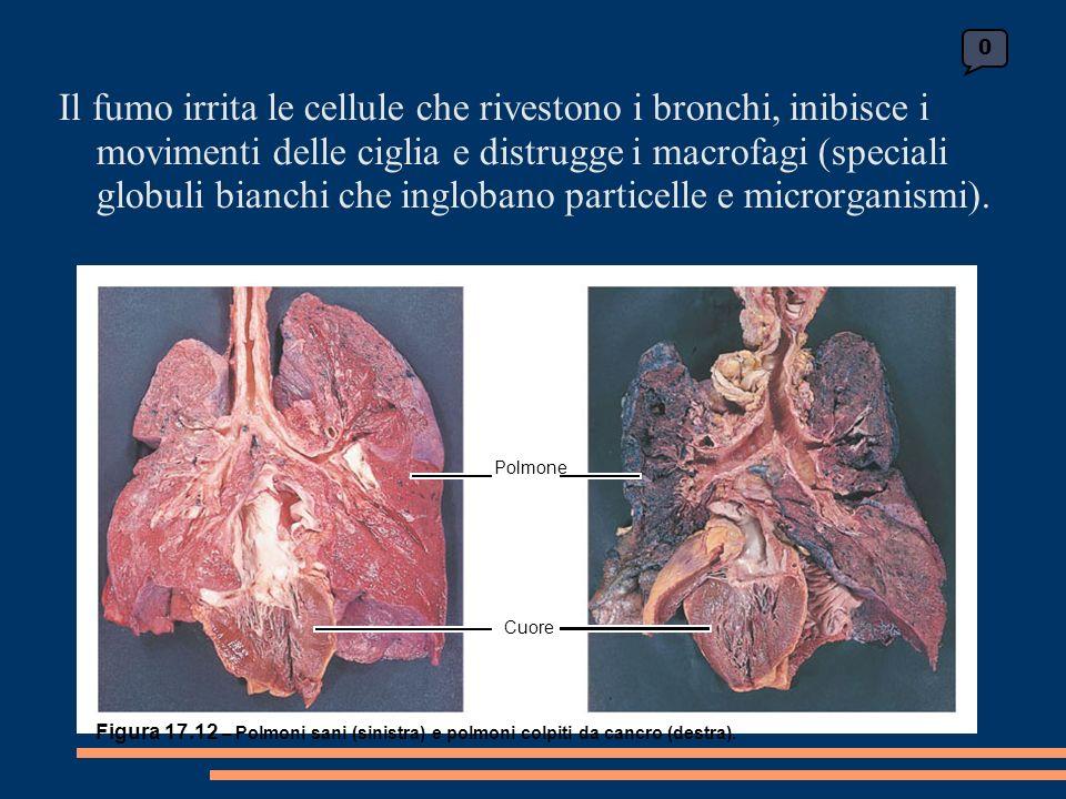 0 Polmone Cuore Figura 17.12 – Polmoni sani (sinistra) e polmoni colpiti da cancro (destra).