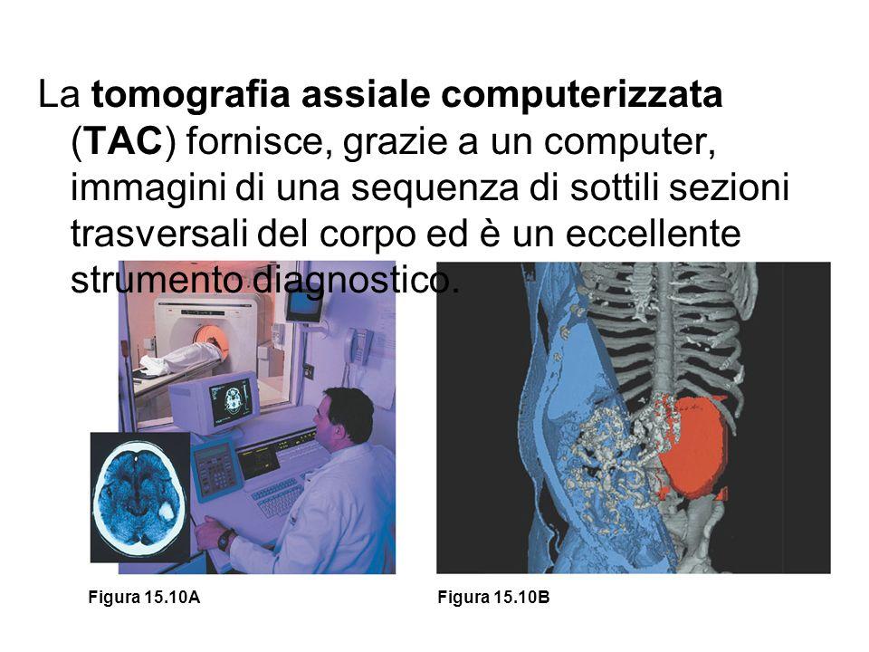 Figura 15.10AFigura 15.10B La tomografia assiale computerizzata (TAC) fornisce, grazie a un computer, immagini di una sequenza di sottili sezioni trasversali del corpo ed è un eccellente strumento diagnostico.
