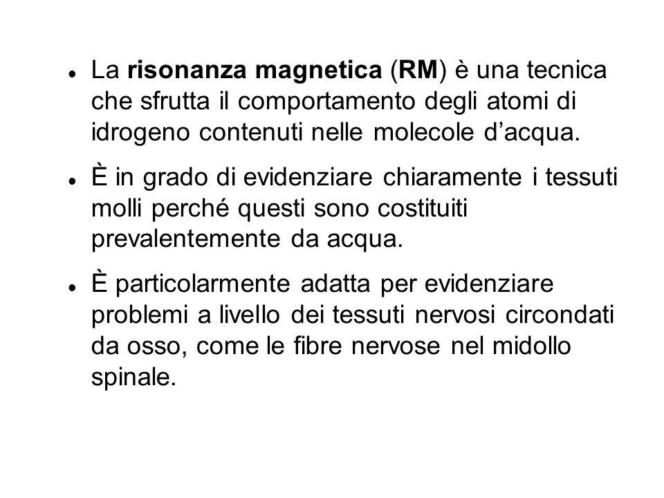 La risonanza magnetica (RM) è una tecnica che sfrutta il comportamento degli atomi di idrogeno contenuti nelle molecole dacqua.
