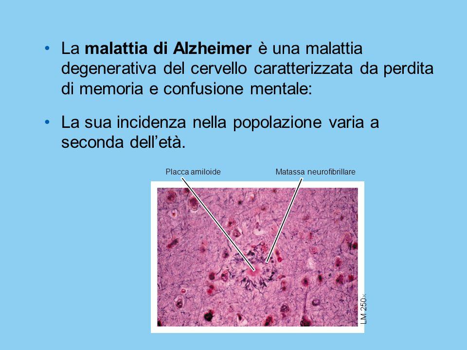 La malattia di Alzheimer è una malattia degenerativa del cervello caratterizzata da perdita di memoria e confusione mentale: La sua incidenza nella po