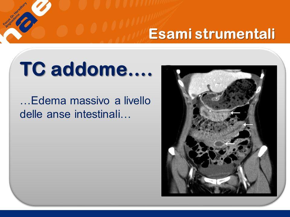 Esami strumentali TC addome…. …Edema massivo a livello delle anse intestinali… TC addome…. …Edema massivo a livello delle anse intestinali…