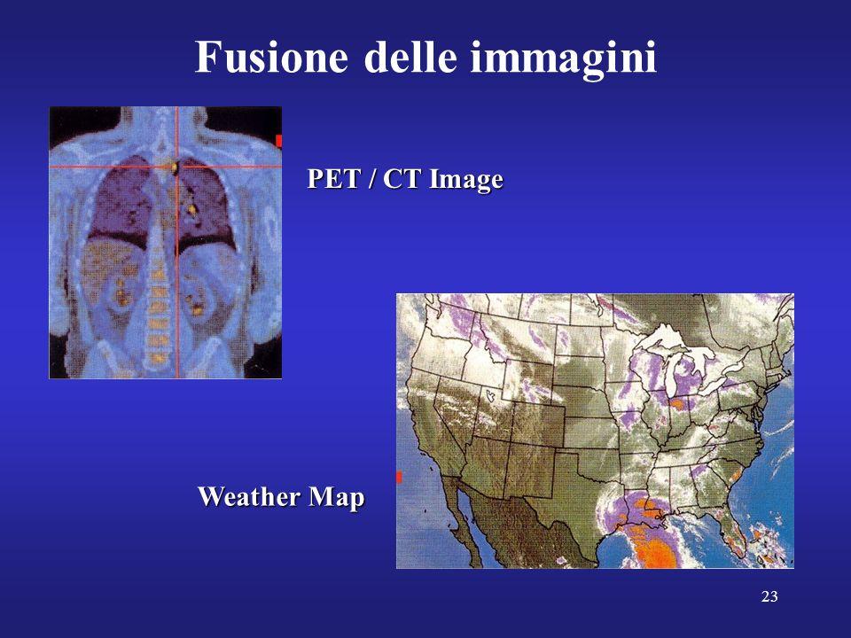 23 Fusione delle immagini PET / CT Image Weather Map