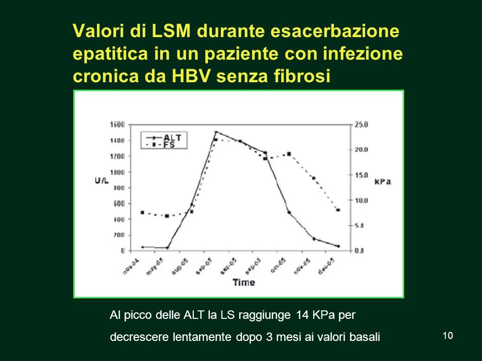 10 Valori di LSM durante esacerbazione epatitica in un paziente con infezione cronica da HBV senza fibrosi Al picco delle ALT la LS raggiunge 14 KPa p