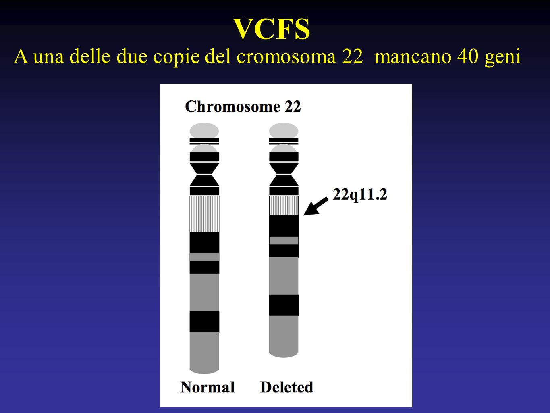 VCFS A una delle due copie del cromosoma 22 mancano 40 geni