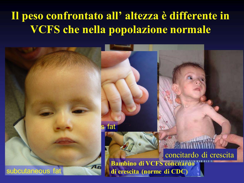 Il peso confrontato all altezza è differente in VCFS che nella popolazione normale Bambino di VCFS concitardo di crescita (norme di CDC) subcutaneous fat concitardo di crescita