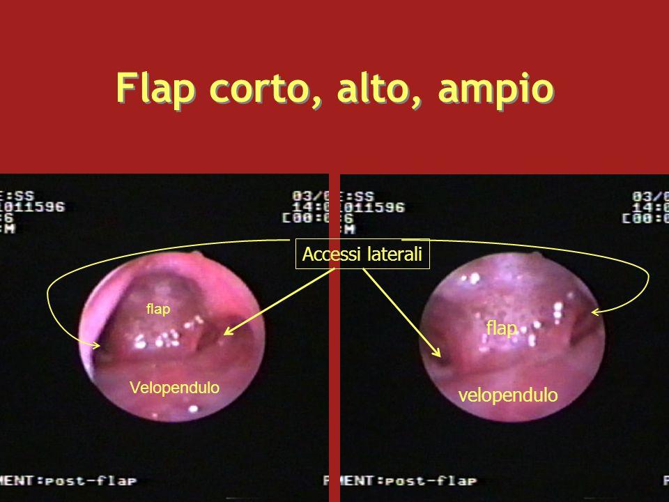 Flap corto, alto, ampio Velopendulo flap velopendulo Accessi laterali