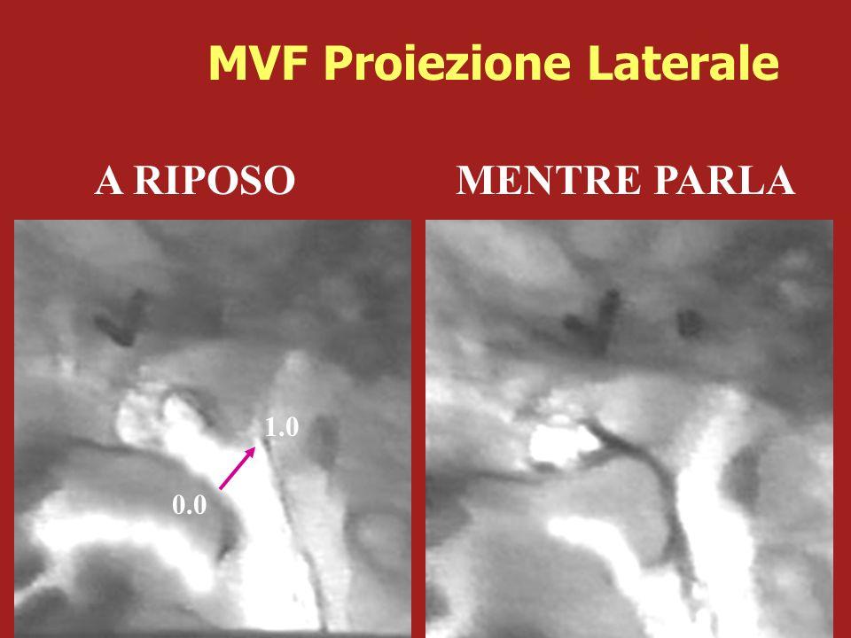 A RIPOSO MENTRE PARLA 0.0 1.0 MVF Proiezione Laterale