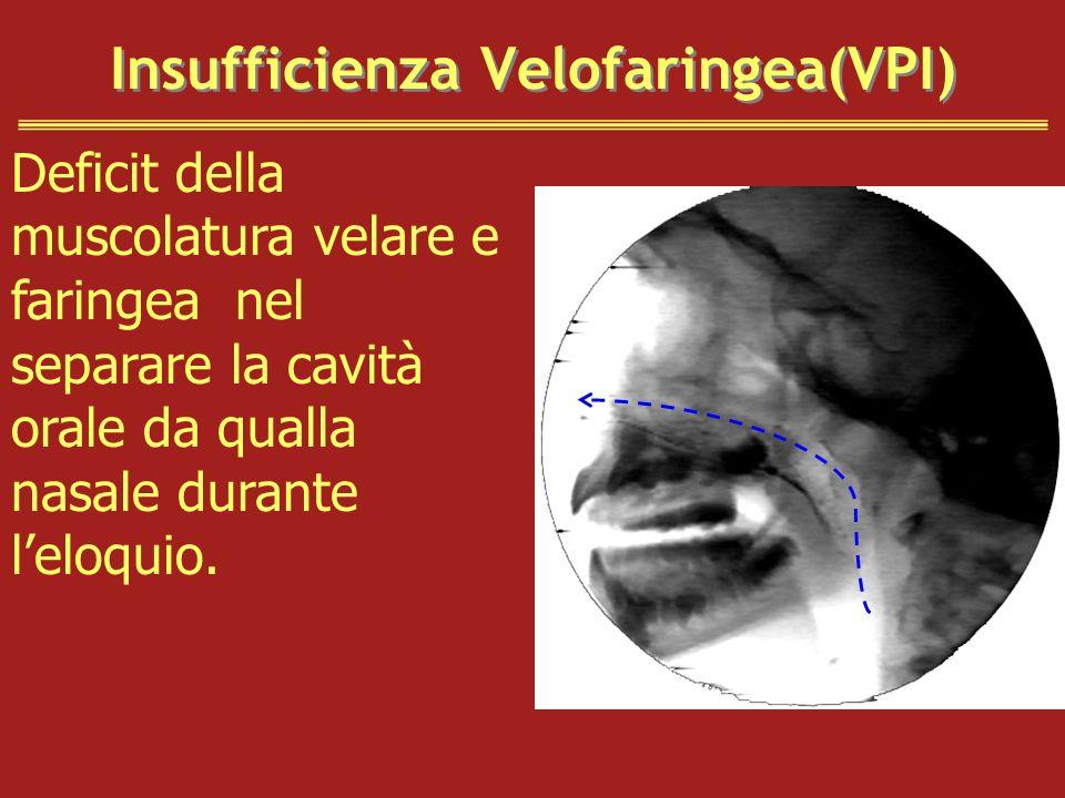 Insufficienza Velofaringea(VPI) Deficit della muscolatura velare e faringea nel separare la cavità orale da qualla nasale durante leloquio.