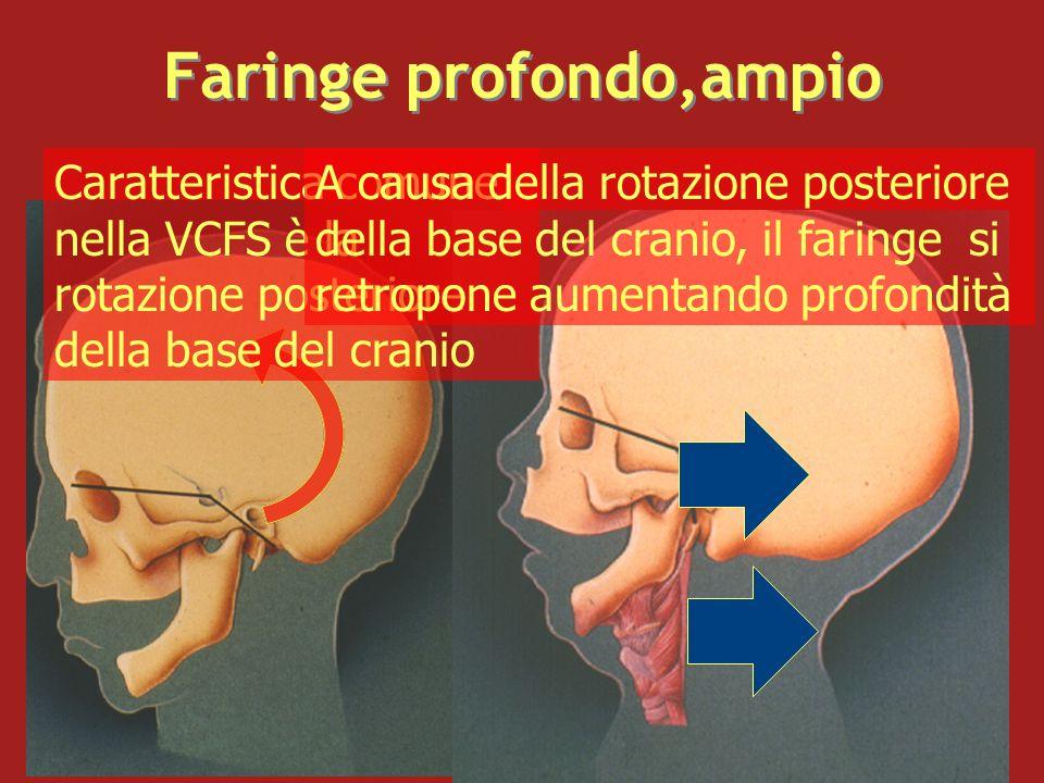 Faringe profondo,ampio Caratteristica comune nella VCFS è la rotazione posteriore della base del cranio A causa della rotazione posteriore della base