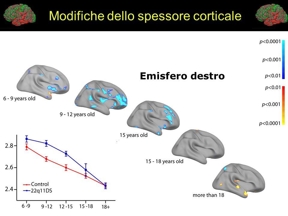 Emisfero destro Modifiche dello spessore corticale
