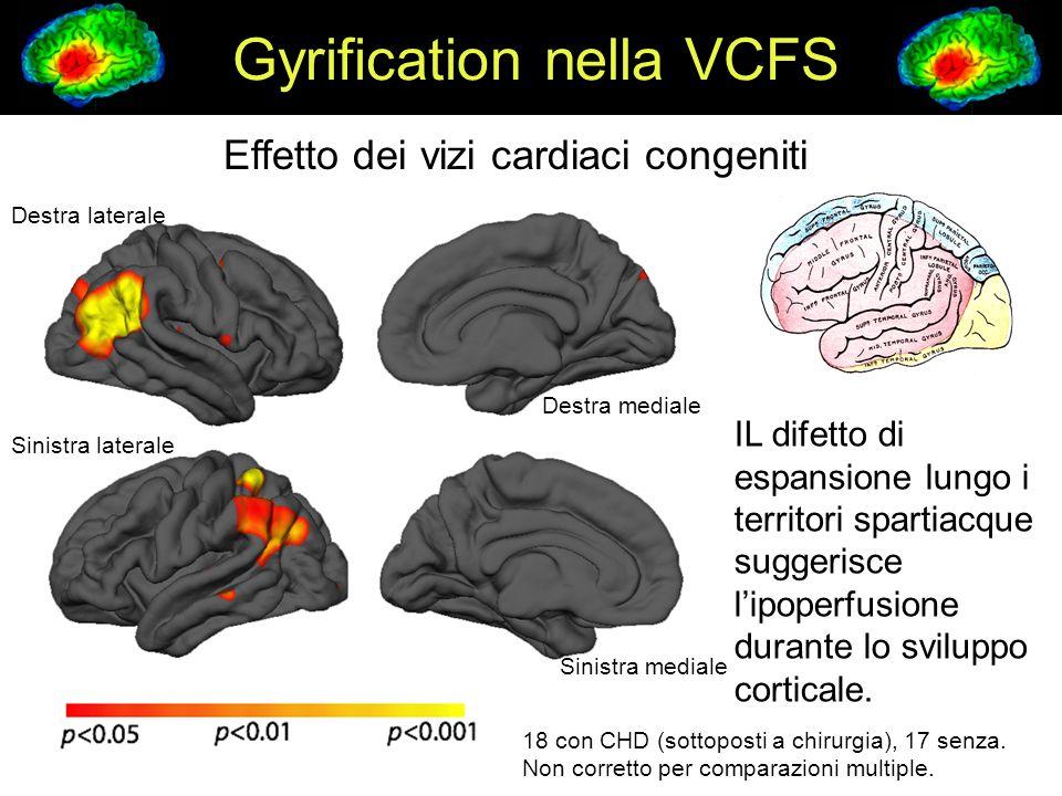 Gyrification nella VCFS Destra laterale Sinistra laterale 18 con CHD (sottoposti a chirurgia), 17 senza.