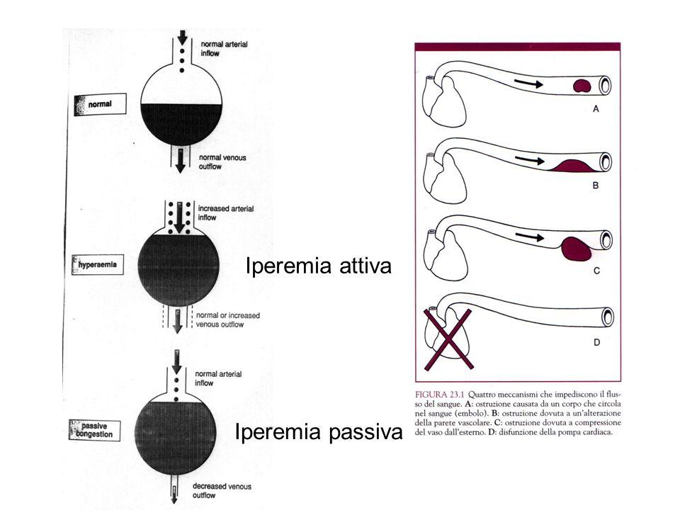 La fibrinolisi: il tappo di fibrina viene degradato dalla plasmina.