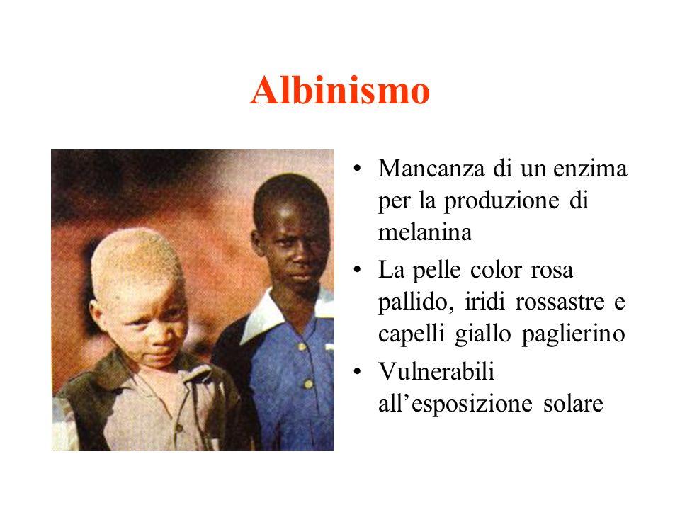 Albinismo Mancanza di un enzima per la produzione di melanina La pelle color rosa pallido, iridi rossastre e capelli giallo paglierino Vulnerabili all