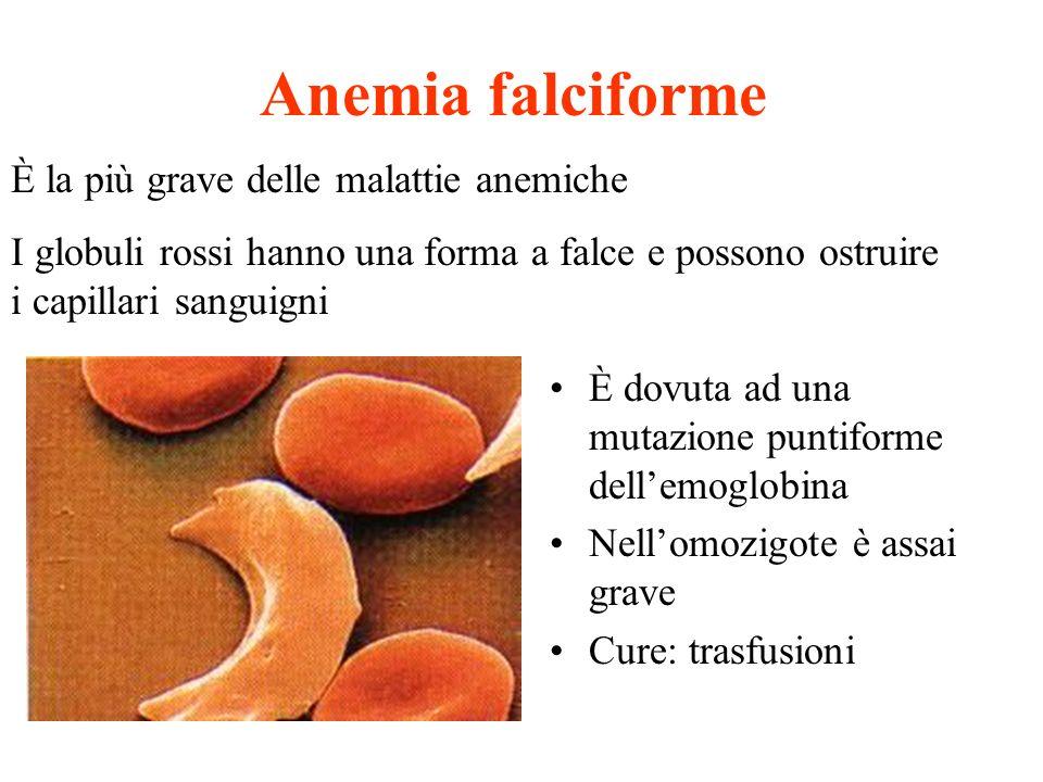Anemia falciforme È dovuta ad una mutazione puntiforme dellemoglobina Nellomozigote è assai grave Cure: trasfusioni È la più grave delle malattie anem