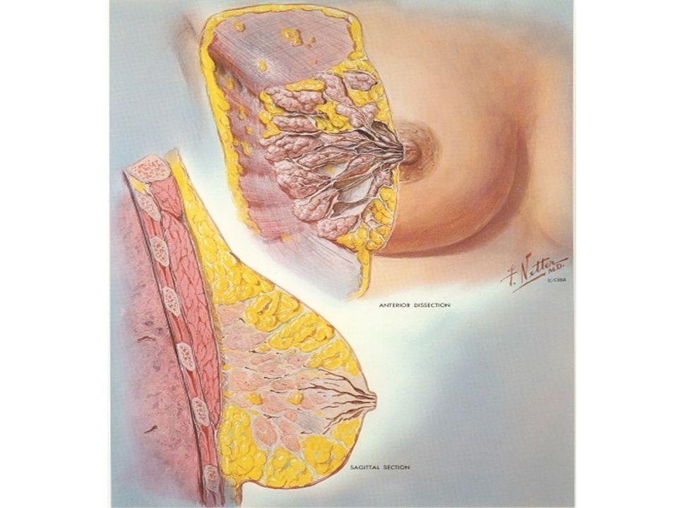 Criteri Di Sospetto Di Predisposizione Genetica Famiglie con più di 2 casi di ca mammario e 1 o 2 allovaio Famiglie con più di 3 casi di ca mammario diagnosticati prima dei 50 anni Coppie di sorelle con i seguenti tumori diagnosticati prima dei 50 anni: - entrambe tumore alla mammella - entrambe tumore allovaio - una con tumore alla mammella laltra allovaio Famiglie con più di 2 casi di ca mammario e 1 o 2 allovaio Famiglie con più di 3 casi di ca mammario diagnosticati prima dei 50 anni Coppie di sorelle con i seguenti tumori diagnosticati prima dei 50 anni: - entrambe tumore alla mammella - entrambe tumore allovaio - una con tumore alla mammella laltra allovaio