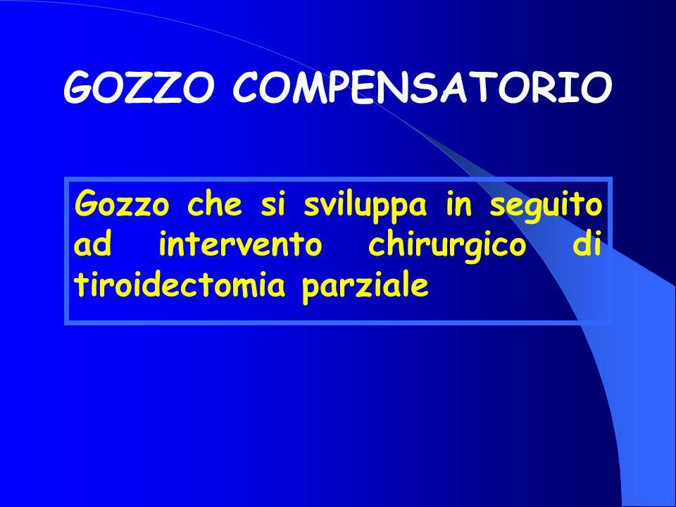 GOZZO COMPENSATORIO Gozzo che si sviluppa in seguito ad intervento chirurgico di tiroidectomia parziale