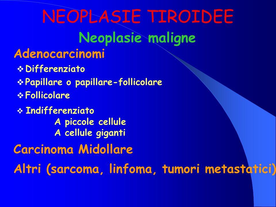 Adenocarcinomi Differenziato Papillare o papillare-follicolare Follicolare Neoplasie maligne NEOPLASIE TIROIDEE Indifferenziato A piccole cellule A ce