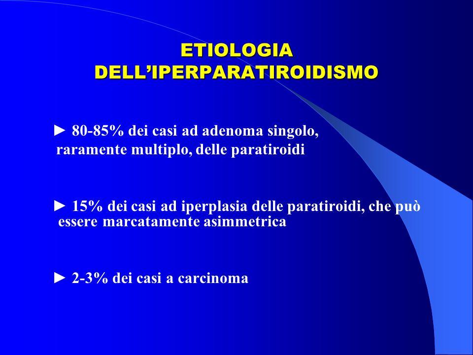 ETIOLOGIA DELLIPERPARATIROIDISMO 80-85% dei casi ad adenoma singolo, raramente multiplo, delle paratiroidi 15% dei casi ad iperplasia delle paratiroid