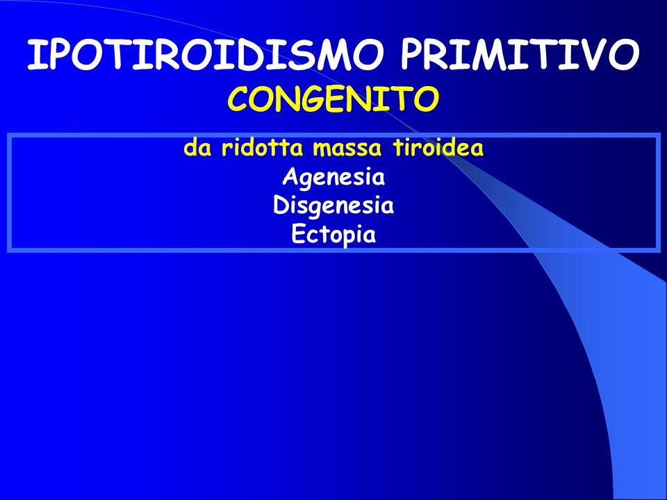IPOTIROIDISMO PRIMITIVO CONGENITO da ridotta massa tiroidea Agenesia Disgenesia Ectopia