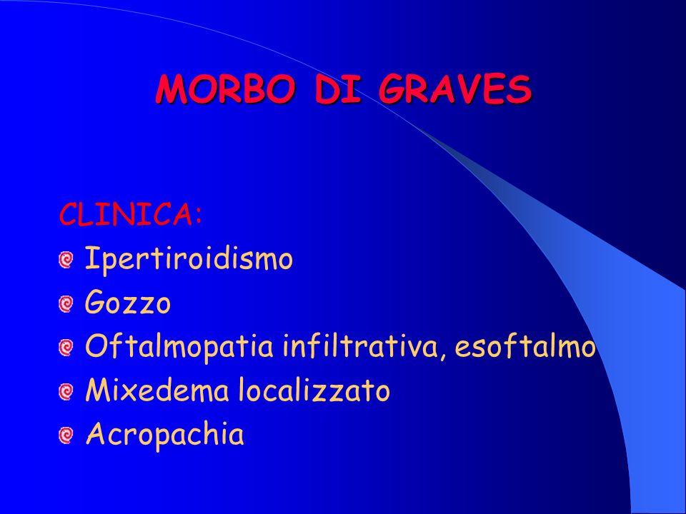 MORBO DI GRAVES CLINICA: Ipertiroidismo Gozzo Oftalmopatia infiltrativa, esoftalmo Mixedema localizzato Acropachia
