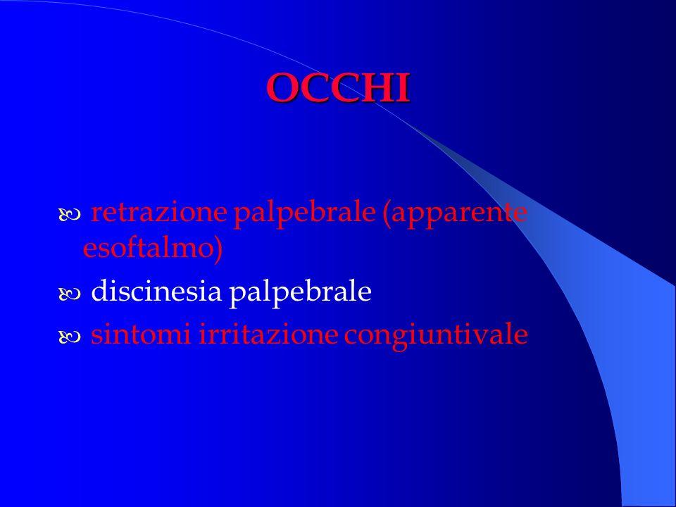 OCCHI retrazione palpebrale (apparente esoftalmo) discinesia palpebrale sintomi irritazione congiuntivale