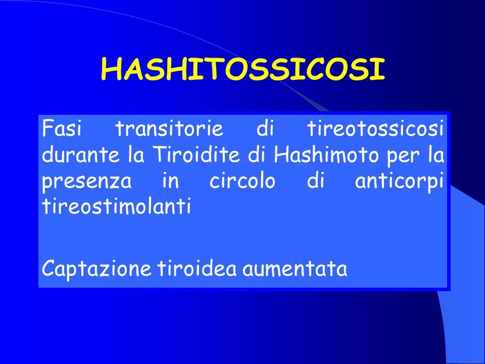 HASHITOSSICOSI Fasi transitorie di tireotossicosi durante la Tiroidite di Hashimoto per la presenza in circolo di anticorpi tireostimolanti Captazione