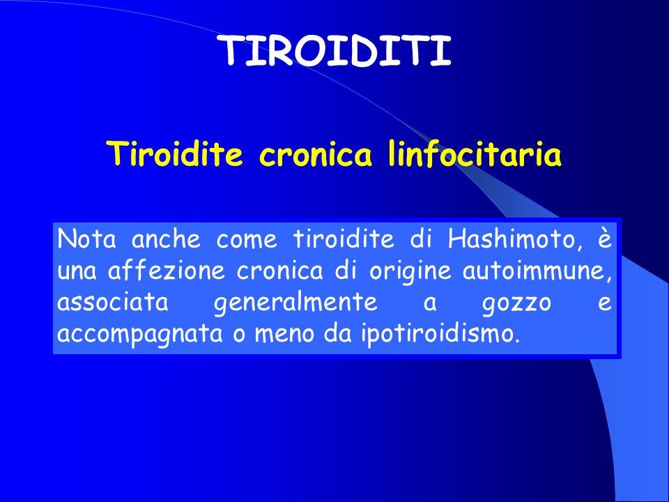 Nota anche come tiroidite di Hashimoto, è una affezione cronica di origine autoimmune, associata generalmente a gozzo e accompagnata o meno da ipotiro