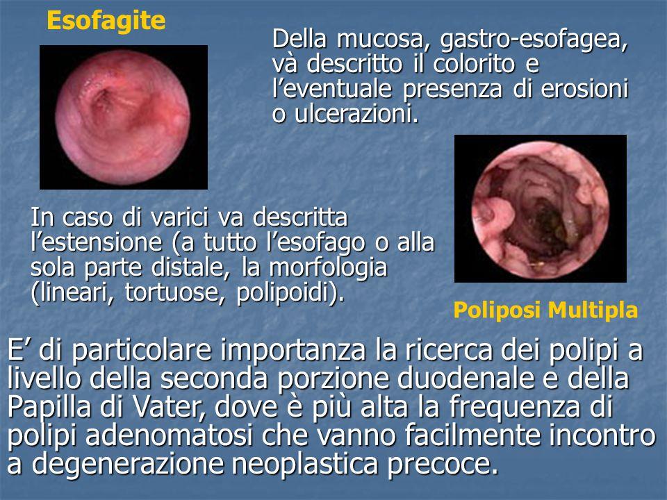 In caso di varici va descritta lestensione (a tutto lesofago o alla sola parte distale, la morfologia (lineari, tortuose, polipoidi). Poliposi Multipl