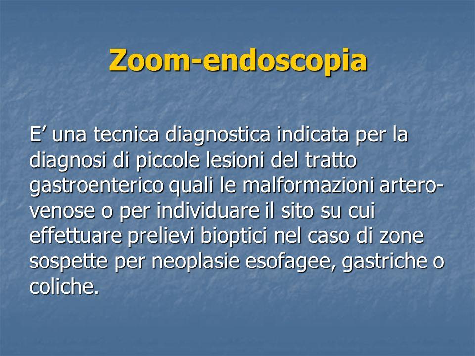 Zoom-endoscopia E una tecnica diagnostica indicata per la diagnosi di piccole lesioni del tratto gastroenterico quali le malformazioni artero- venose