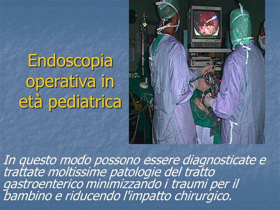 Endoscopia operativa in età pediatrica In questo modo possono essere diagnosticate e trattate moltissime patologie del tratto gastroenterico minimizza