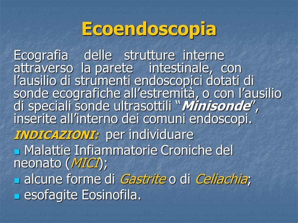 Ecoendoscopia Lecoendoscopia consente la definizione diagnostica di lesioni di qualsiasi natura, site sia allinterno della parete gastrointestinale che nelle strutture adiacenti, consentendo leffettuazione di prelievi di tessuto per lesame istologico.