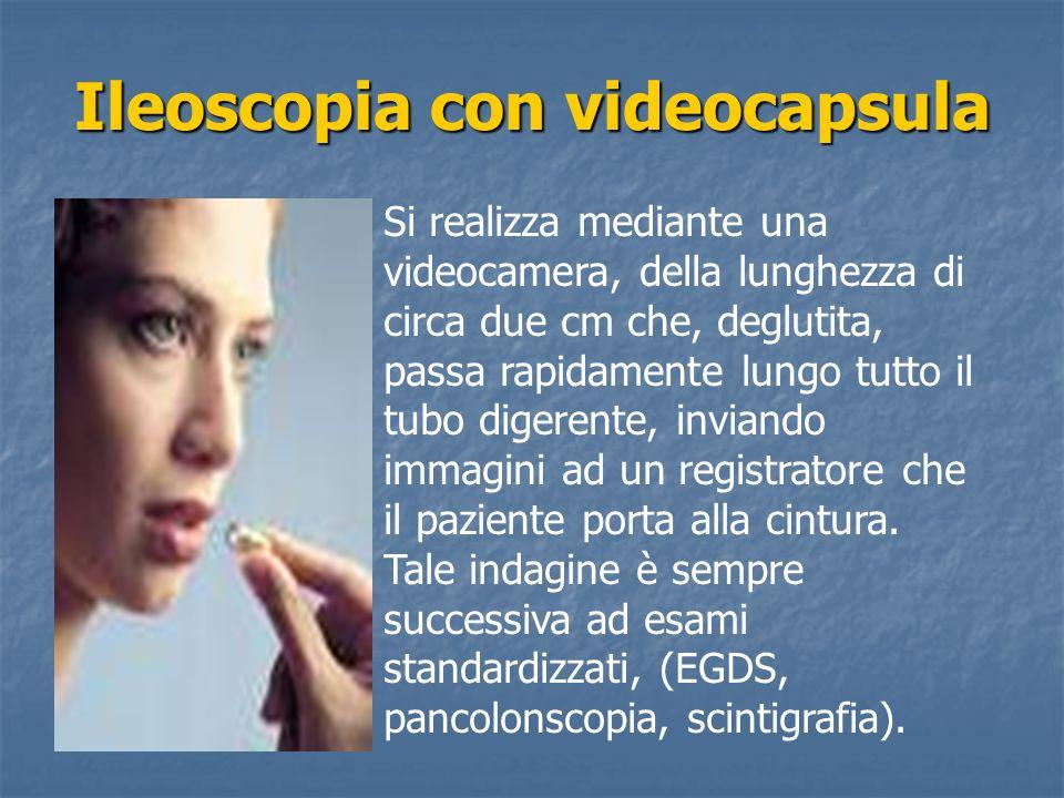 Ileoscopia con videocapsula Si realizza mediante una videocamera, della lunghezza di circa due cm che, deglutita, passa rapidamente lungo tutto il tub