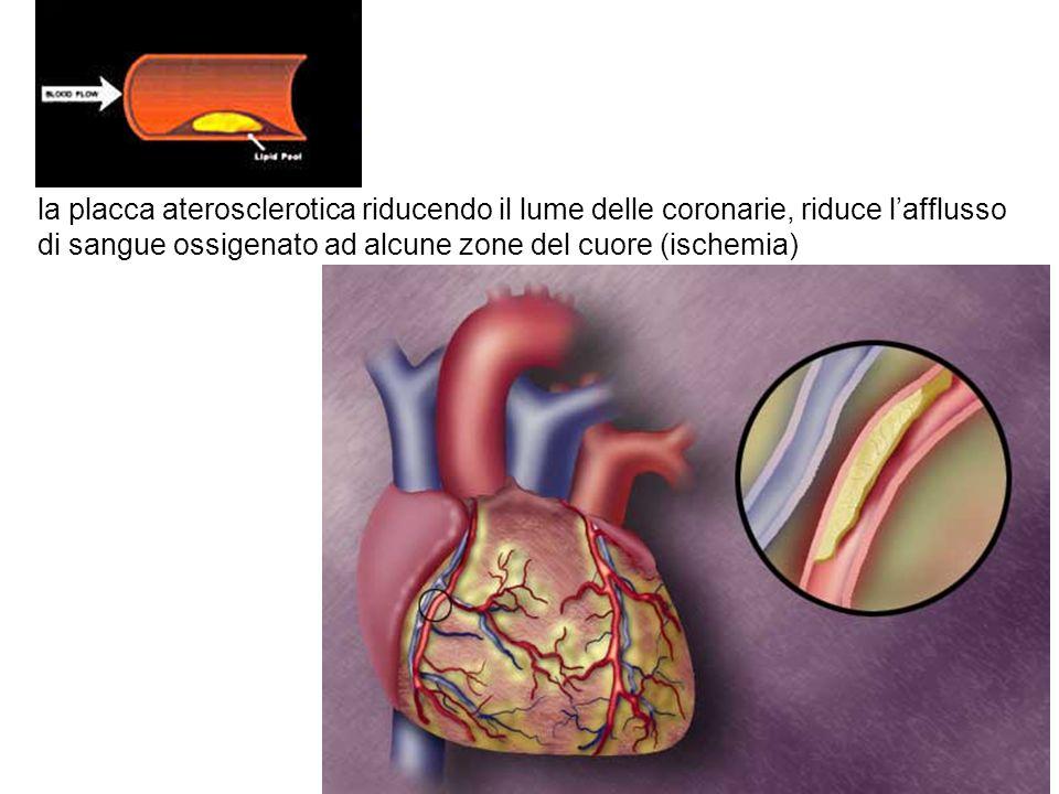 la placca aterosclerotica riducendo il lume delle coronarie, riduce lafflusso di sangue ossigenato ad alcune zone del cuore (ischemia)