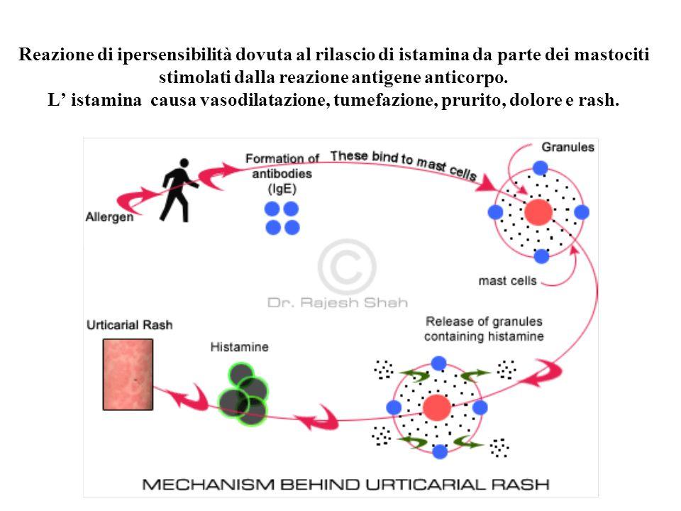 Reazione di ipersensibilità dovuta al rilascio di istamina da parte dei mastociti stimolati dalla reazione antigene anticorpo. L istamina causa vasodi