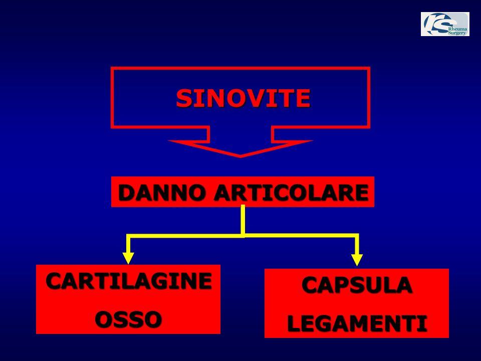 SINOVITE DANNO ARTICOLARE CARTILAGINEOSSO CAPSULALEGAMENTI