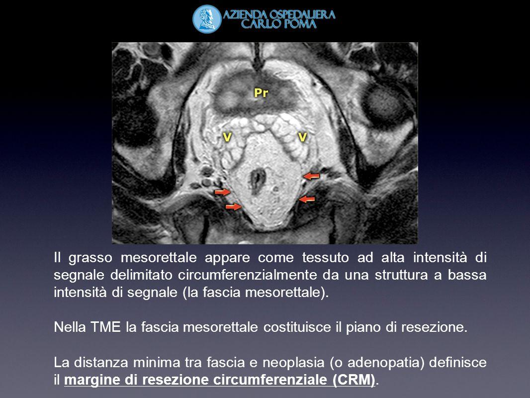 Il grasso mesorettale appare come tessuto ad alta intensità di segnale delimitato circumferenzialmente da una struttura a bassa intensità di segnale (