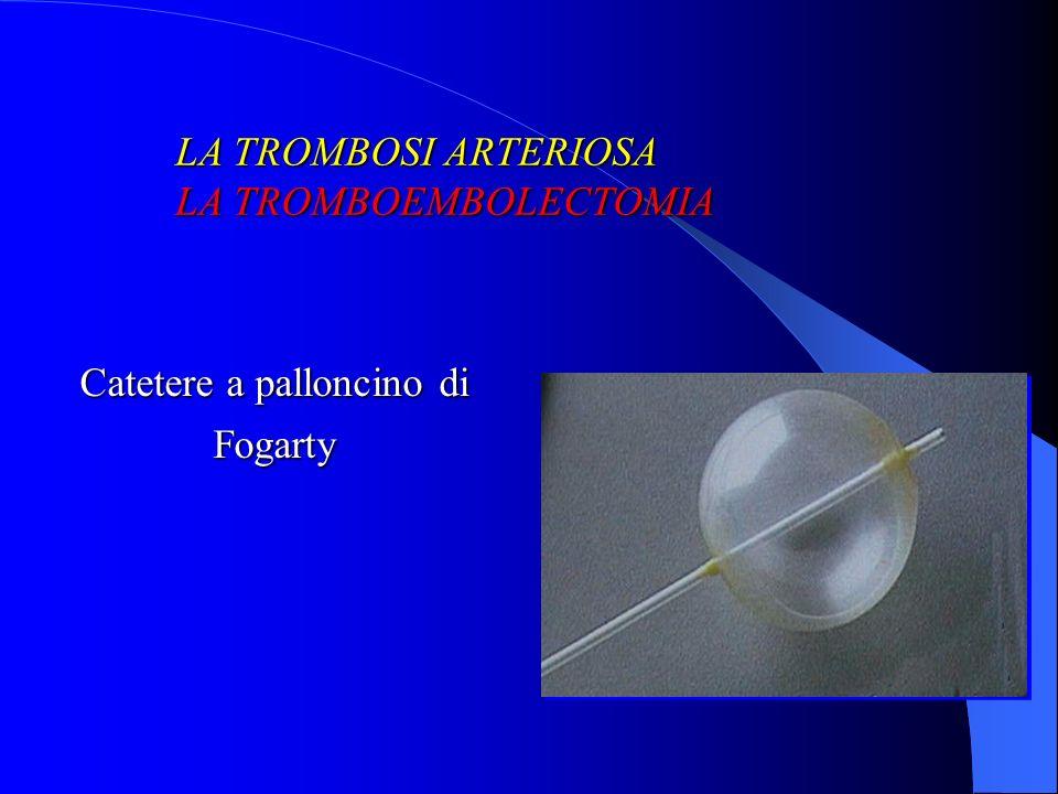 Catetere a palloncino di Fogarty LA TROMBOSI ARTERIOSA LA TROMBOEMBOLECTOMIA