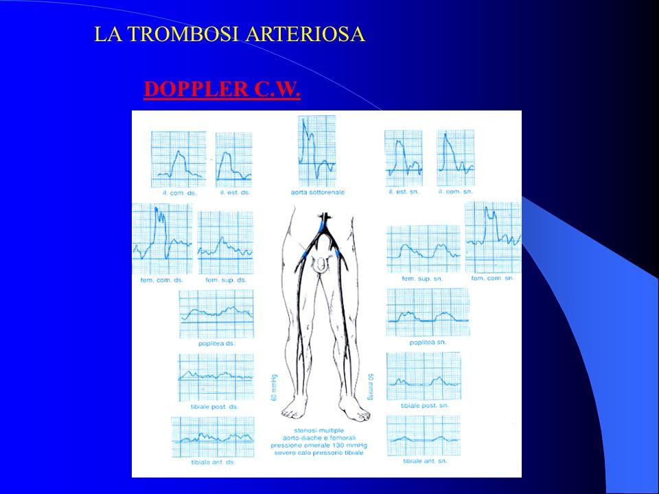 DOPPLER C.W. LA TROMBOSI ARTERIOSA