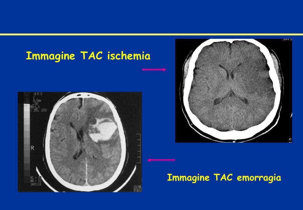 Immagine TAC ischemia Immagine TAC emorragia