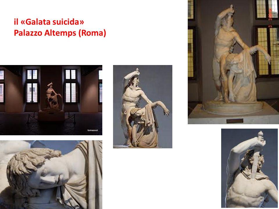 il «Galata suicida» Palazzo Altemps (Roma)
