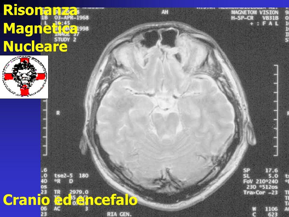 Risonanza Magnetica Nucleare Cranio ed encefalo