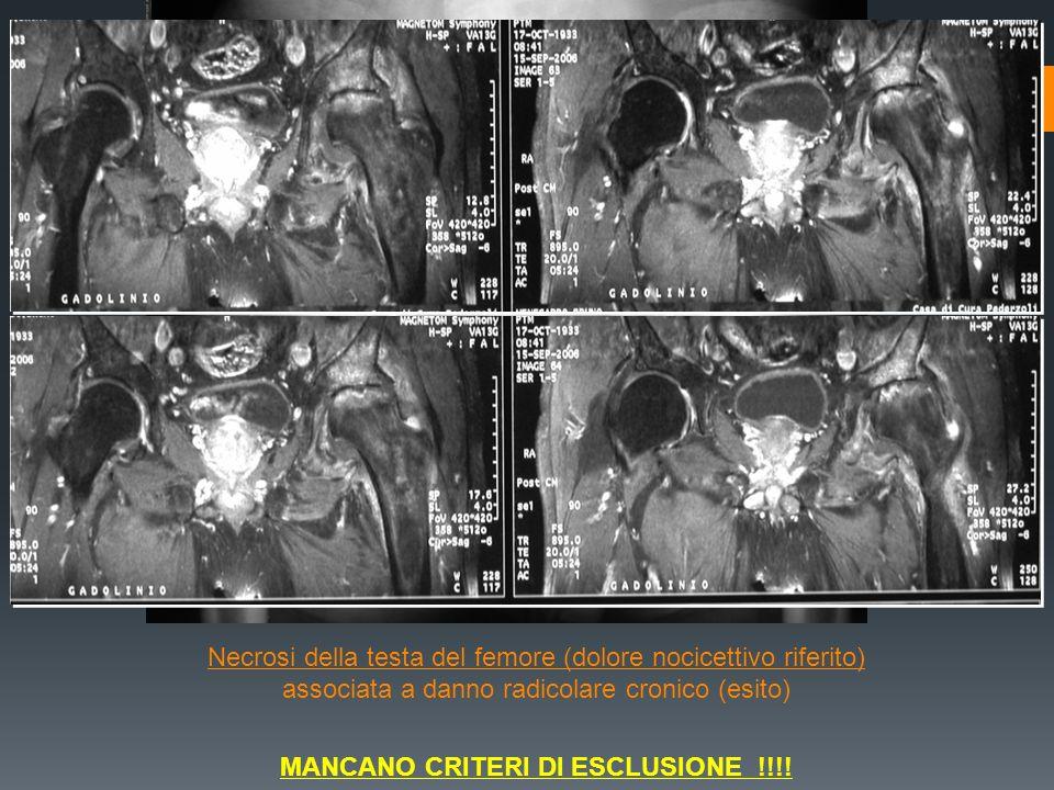 Necrosi della testa del femore (dolore nocicettivo riferito) associata a danno radicolare cronico (esito) MANCANO CRITERI DI ESCLUSIONE !!!!