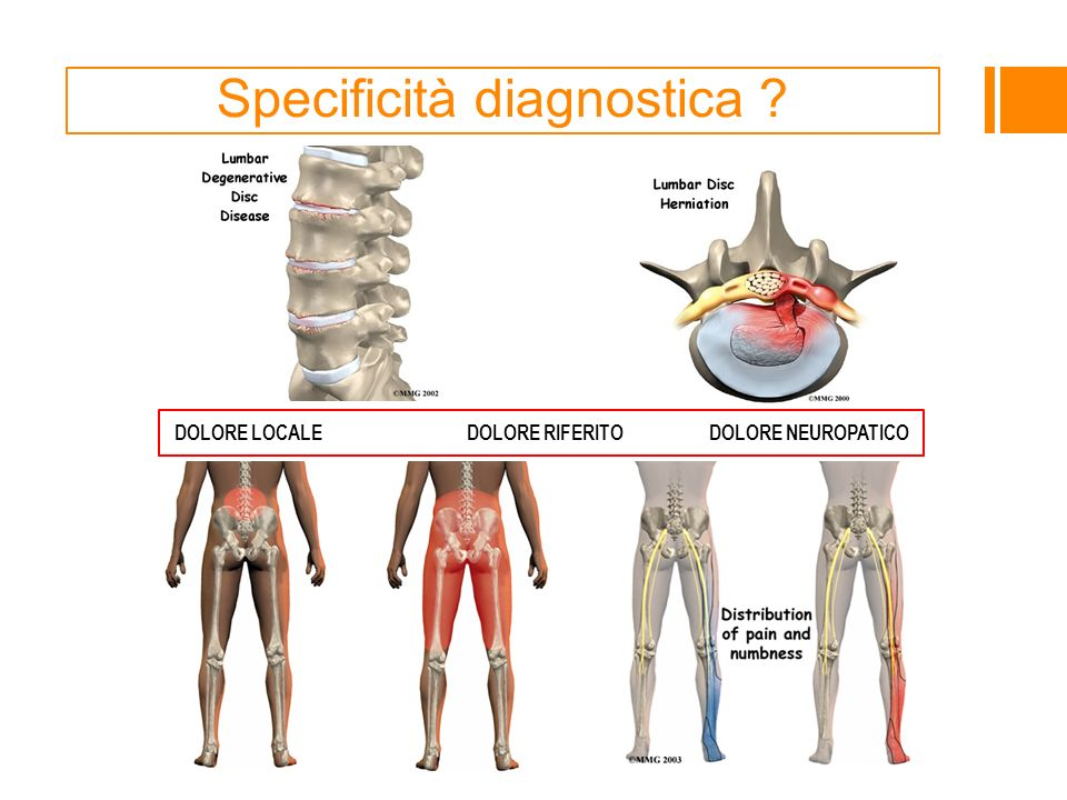 Specificità diagnostica ? DOLORE LOCALE DOLORE RIFERITO DOLORE NEUROPATICO