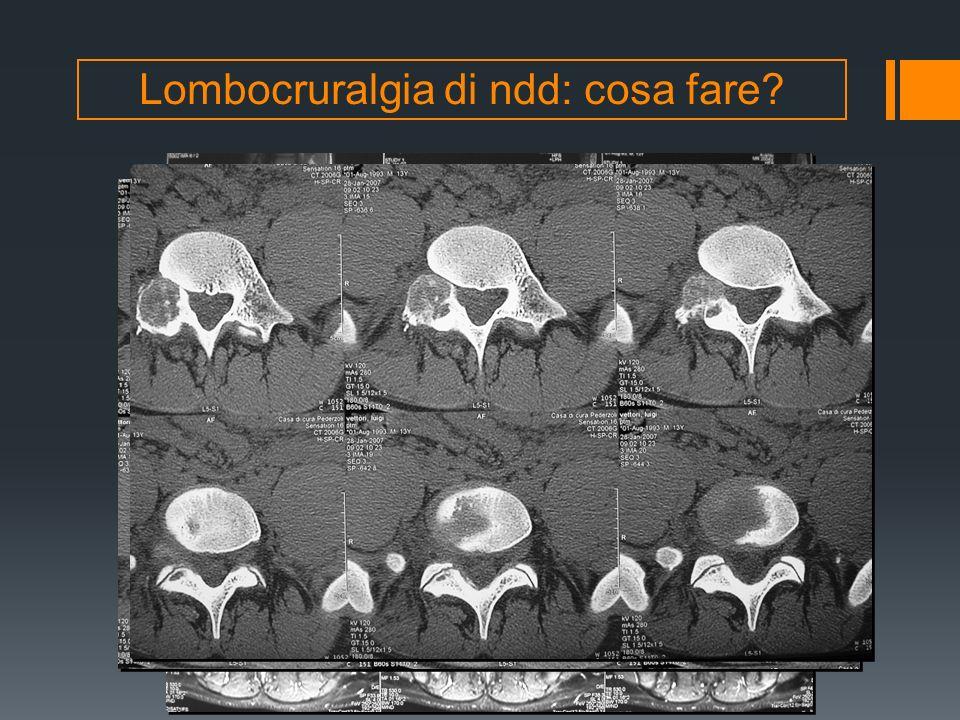 Lombocruralgia di ndd: cosa fare? RMN L/S con mdc (neurinoma?)
