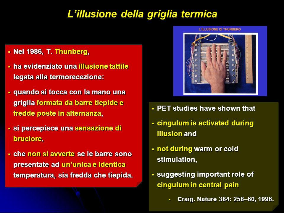 Lillusione della griglia termica Nel 1986, T. Thunberg, Nel 1986, T. Thunberg, ha evidenziato una illusione tattile legata alla termorecezione: ha evi